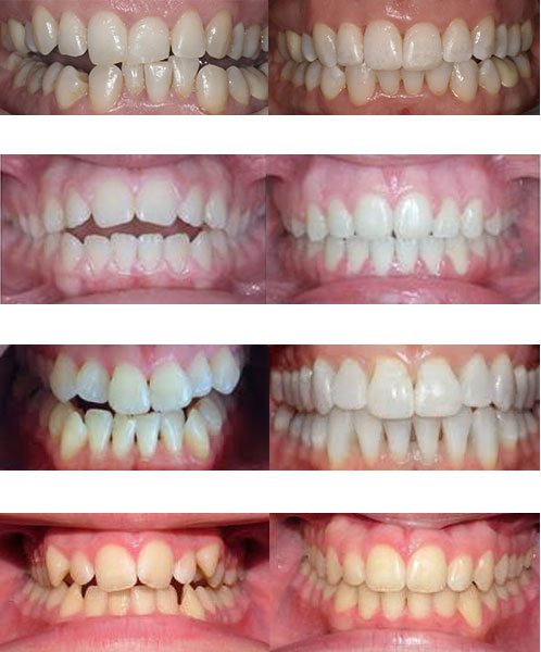 orthodontics-before-and-after