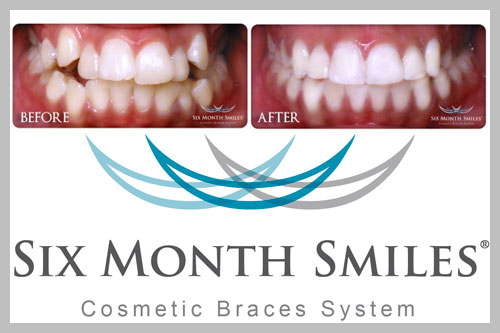 six-months-smile